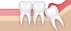Zahn op trotz erkältung